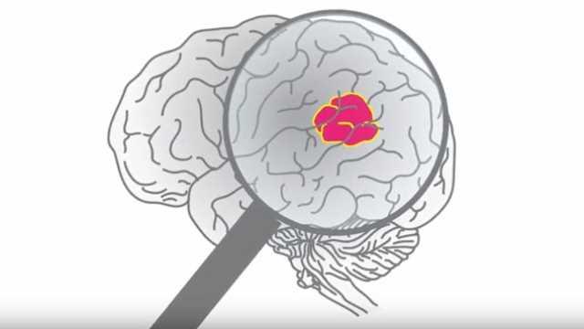 Γλοίωμα εγκεφάλου – Πόσα (δεν) γνωρίζουμε?