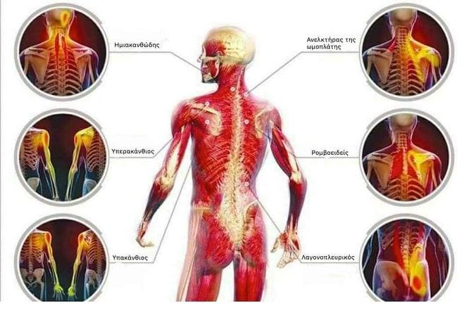 Μία σύγχρονη προσέγγιση στο σύνδρομο του μυοπεριτονιακού πόνου