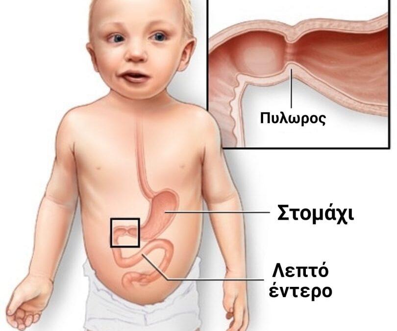 Στένωση πυλωρού σε παιδί: Όλα όσα πρέπει να ξέρεις