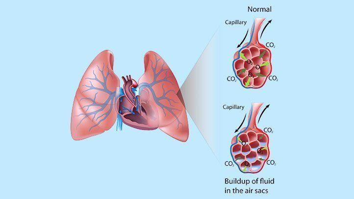 Οξύ πνευμονικό οίδημα: Αίτια, συμπτώματα και αντιμετώπιση