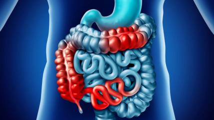 Νόσος του Crohn και νοσηλευτικές παρεμβάσεις